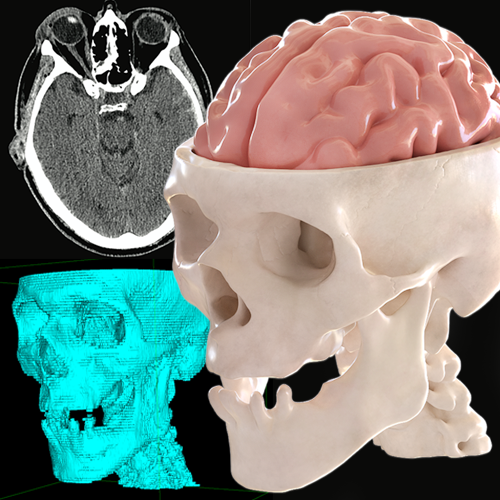 3D Models From Patient Data