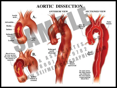 Medical Illustration of Aortic Dissection