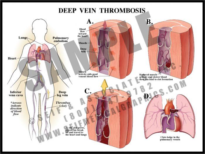 Medical Illustration of Deep Vein Thrombosis
