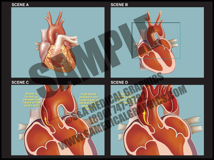 Medical Illustration of Aortic Dissection Animation