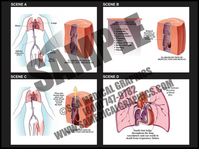 Medical Illustration of Deep Vein Thrombosis Pulmonary Embolism Animation