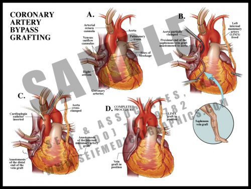 Medical Illustration of Coronary Artery Bypass Grafting
