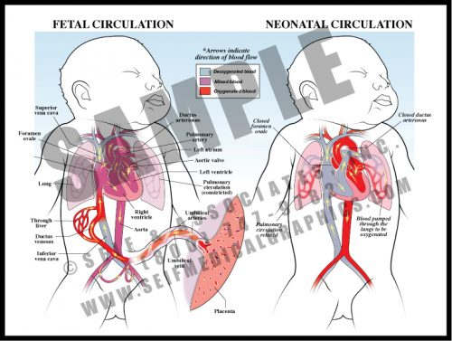 Medical Illustration of Fetal Neonatal Circulation