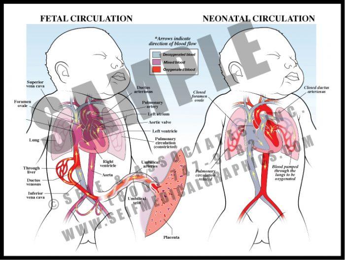 Medical Illustration of Fetal Neonatal Circulation