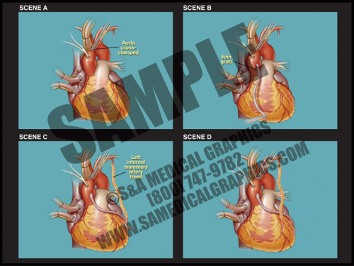 Medical Illustration of CABG Animation