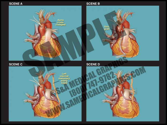Medical Illustration of CABG Animation