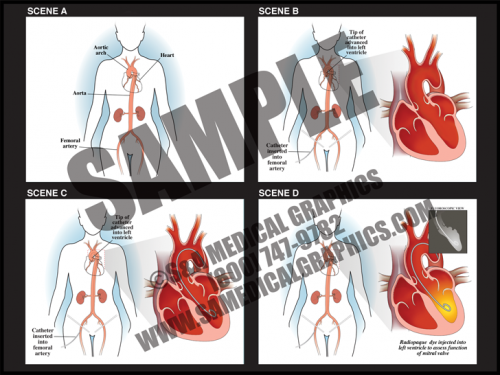 Medical Illustration of Cardiac Catheter Animation