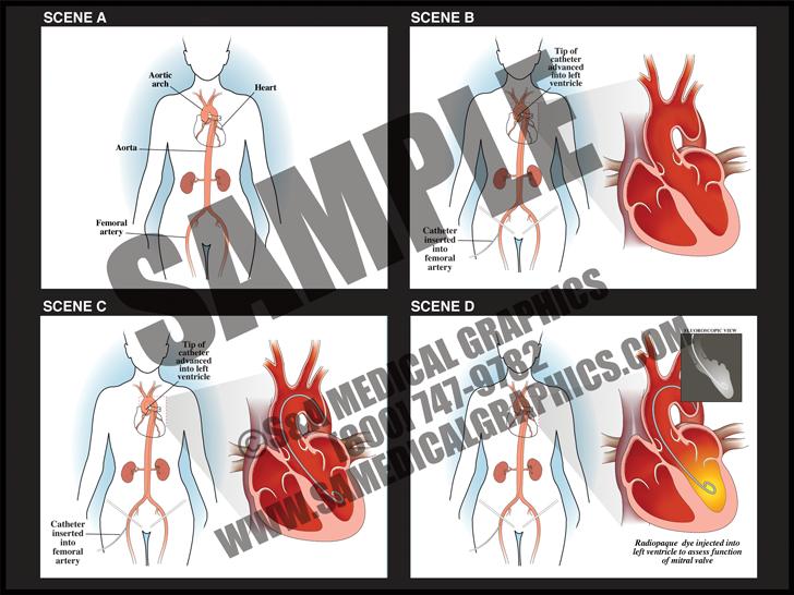 Medical Illustration of Cardiac Catheter Animation
