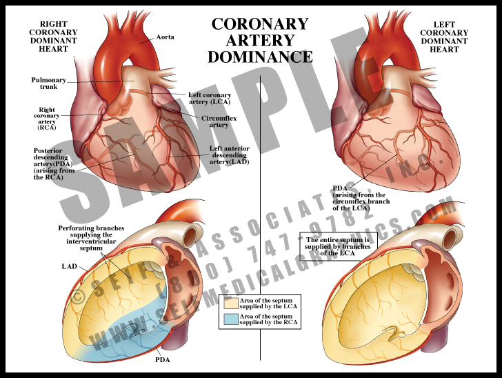Medical Illustration of Coronary Artery Dominance