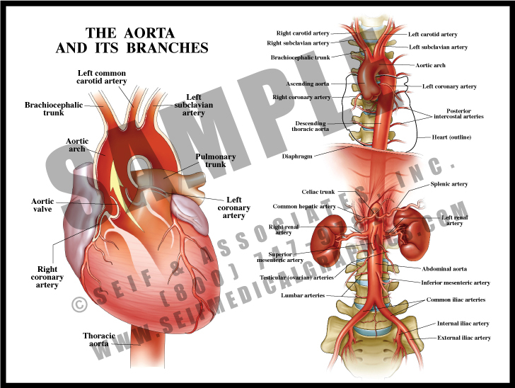 Medical Illustration of The Aorta and Its Branches