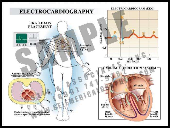 Medical Illustration of Electrocardiography