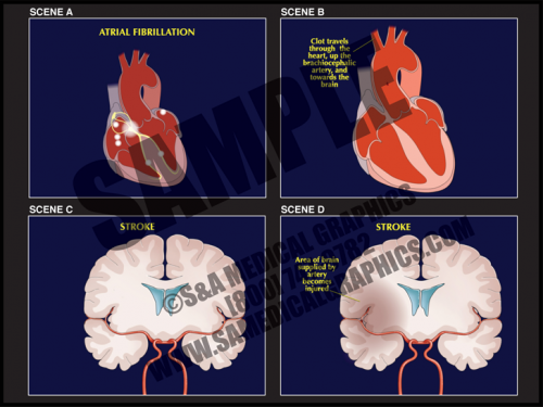 Medical Illustration of Atrial Fibrillation Animation
