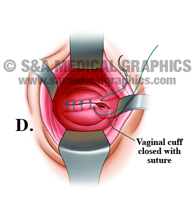 Medical Illustration Hysterectomy Step D