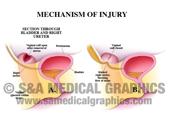 Medical Illustration Hysterectomy Procedure Mechanism of Injury