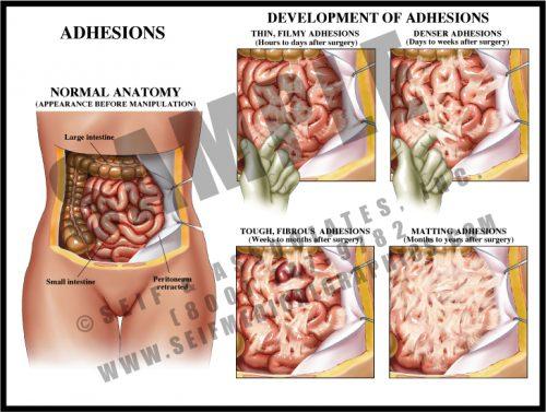 Medical Illustration of Adhesions