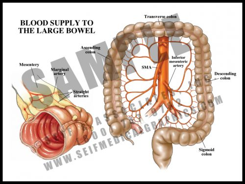Medical Illustration of Blood Supply to The Large Bowel