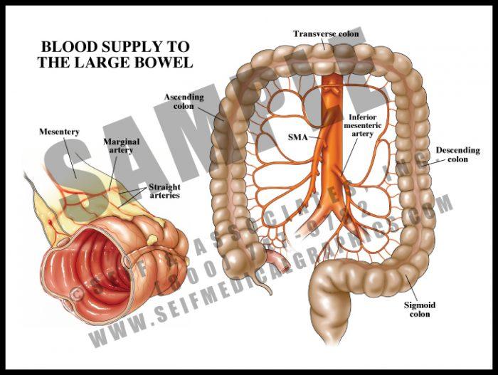 Medical Illustration of Blood Supply to The Large Bowel