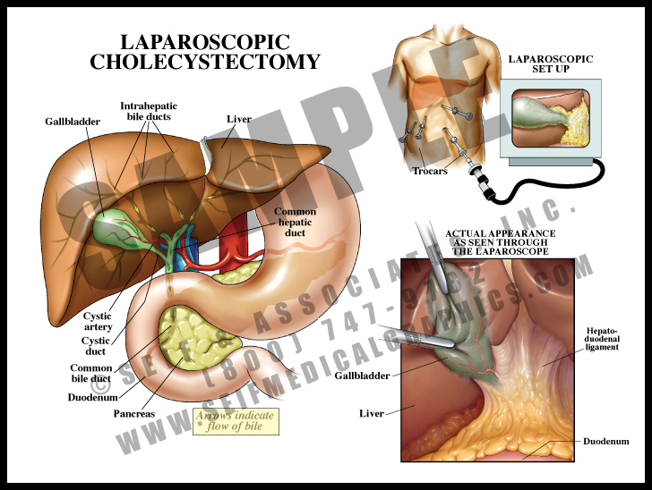 Medical Illustration of Laparoscopic Cholecystectomy Surgical Setup