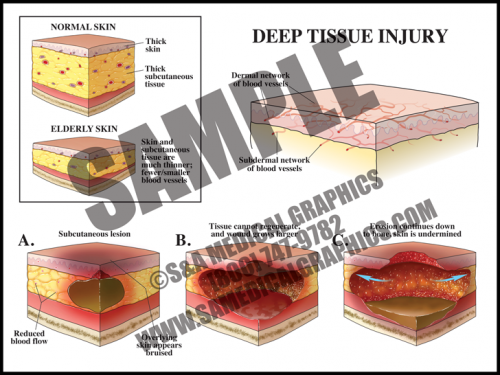 Medical Illustration of Deep Tissue Injury