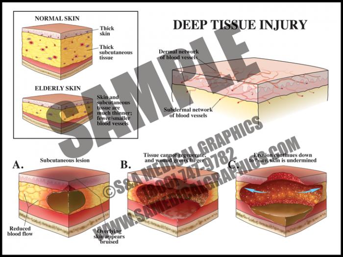 Medical Illustration of Deep Tissue Injury