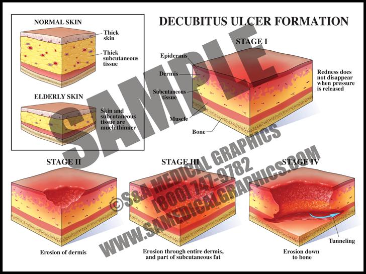 Medical Illustration of Decubitus Ulcer Formation