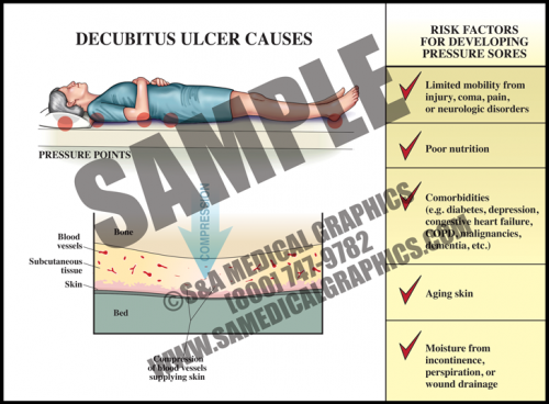 Medical Illustration of Decubitus Ulcer Causes