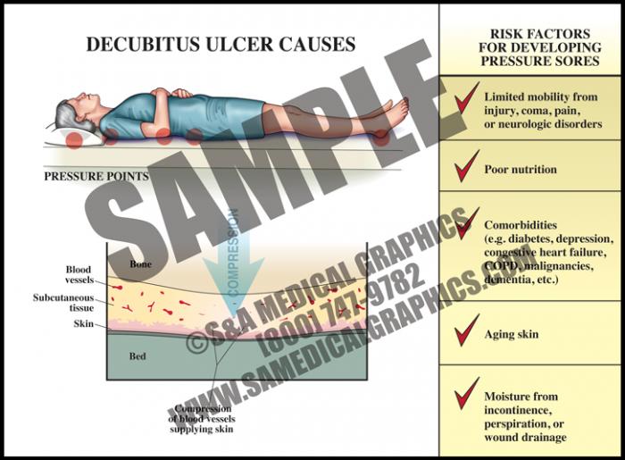 Medical Illustration of Decubitus Ulcer Causes
