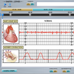 Fetal Heart Monitor Interactive