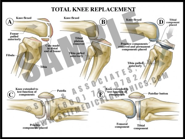 Medical Illustration of Total Knee Replacement