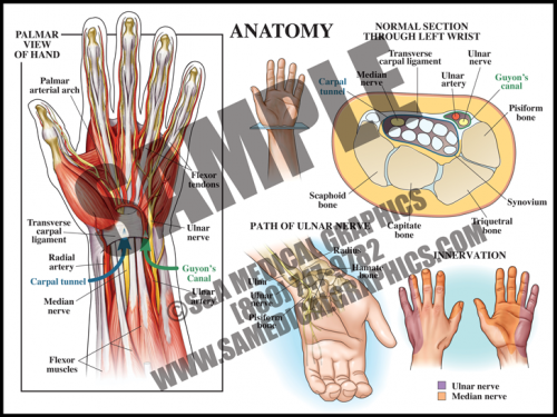 Medical Illustration of Carpal Tunnel