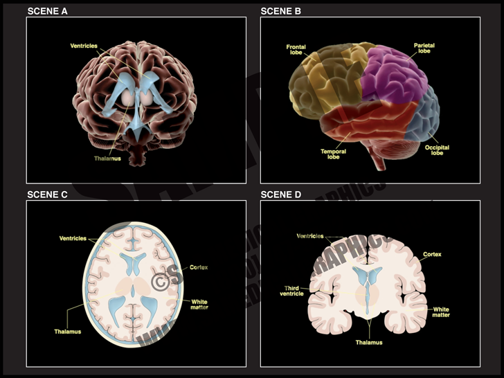 Medical Illustration of Brain Anatomy Animation