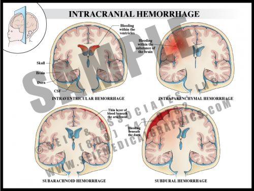 Medical Illustration of Intracranial Hemorrhage