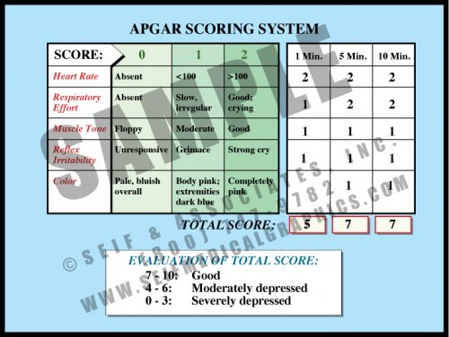 Medical Illustration of APGAR Scoring System