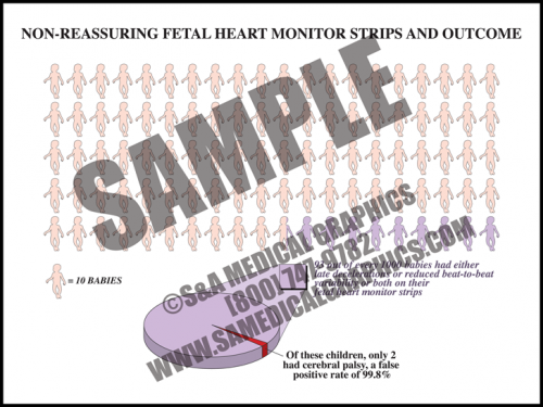 Medical Illustration of Non-reassuring Fetal Heart Monitor Strips and Outcome