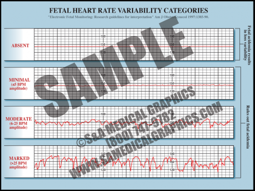 Medical Illustration of Fetal Heart Rate Variability Categories