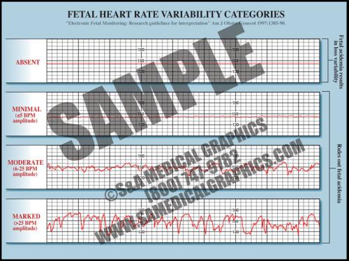 Medical Illustration of Fetal Heart Rate Variability Categories