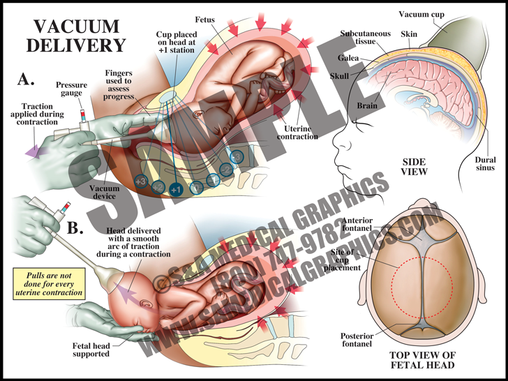 Medical Illustration of Vacuum Delivery