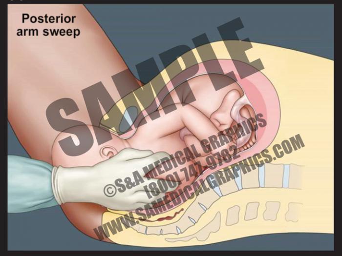 Medical Illustration of Posterior Arm Release