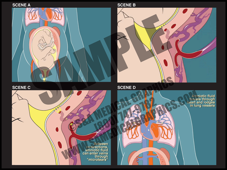 Medical Illustration of Amniotic Fluid Embolism