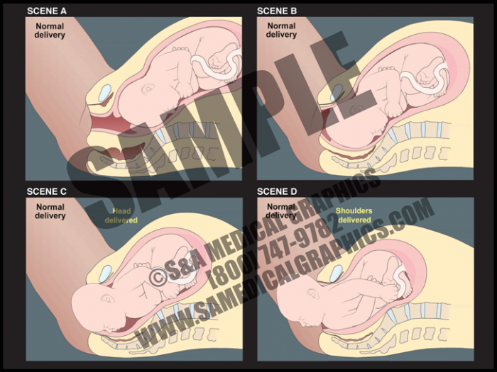 Medical Illustration of Normal Delivery Animation