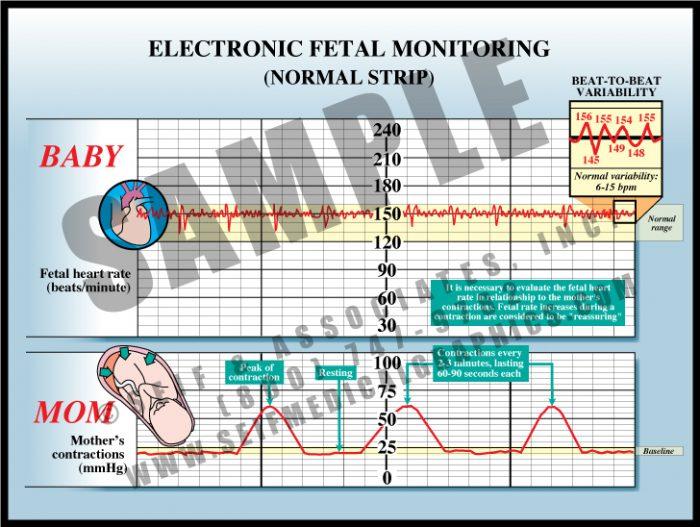 Medical Illustration of Electronic Fetal Monitoring Normal Strip