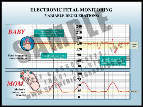 Medical Illustration of Electronic Fetal Monitoring Variable Decelerations