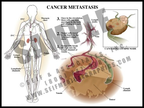 Medical Illustration of Cancer Metastasis