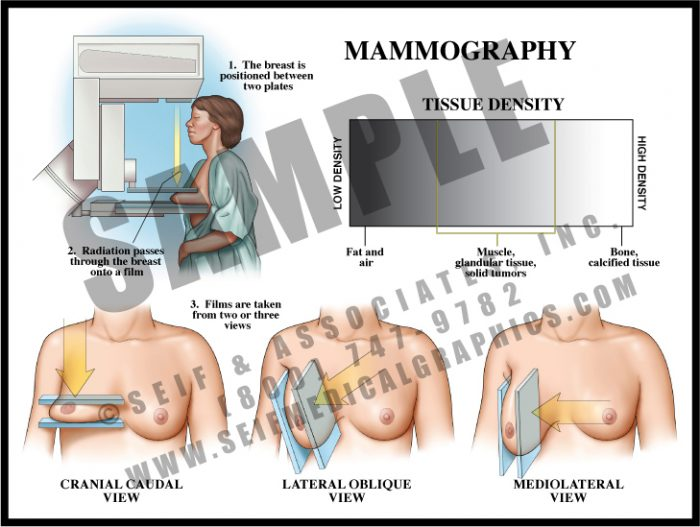 Medical Illustration of Mammography