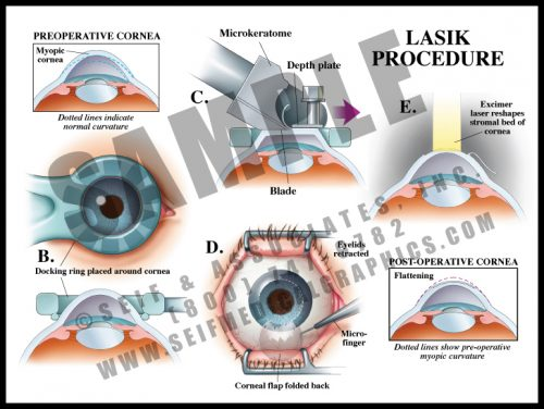 Medical Illustration of LASIK Procedure