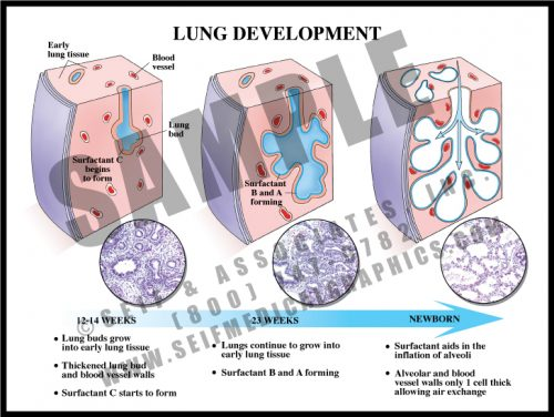 Medical Illustration of Lung Development