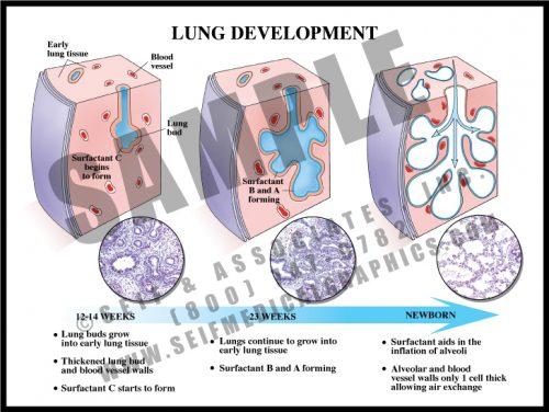 Medical Illustration of Lung Development