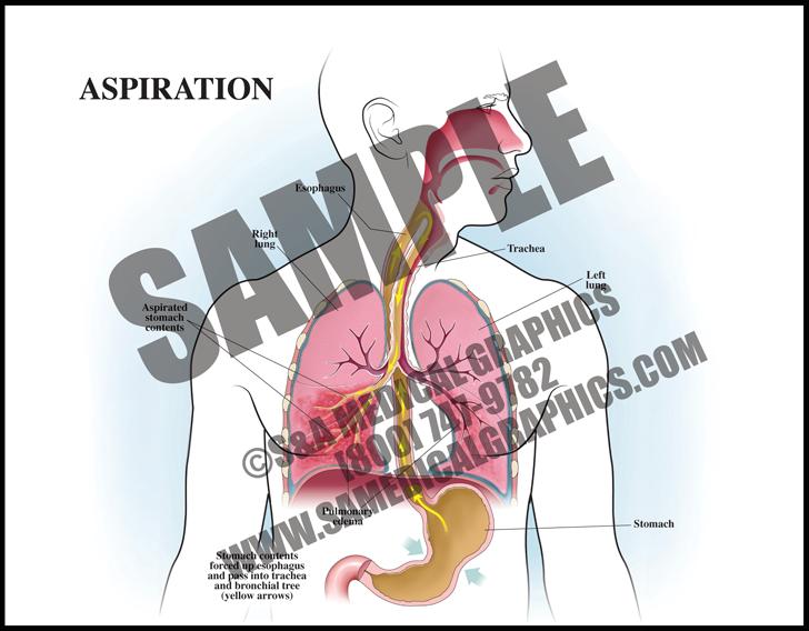 Medical Illustration of Aspiration