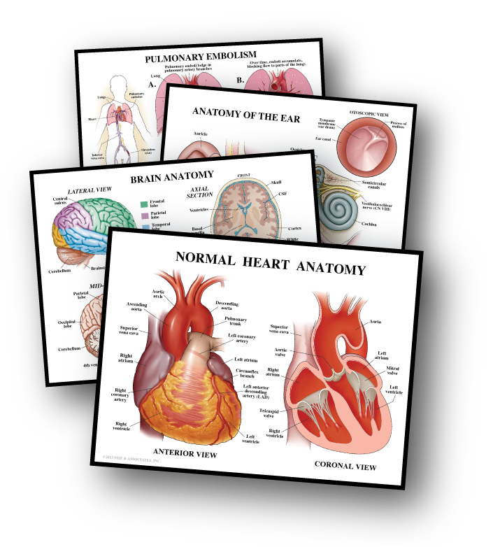 Stock Medical Legal Illustration Exhibits