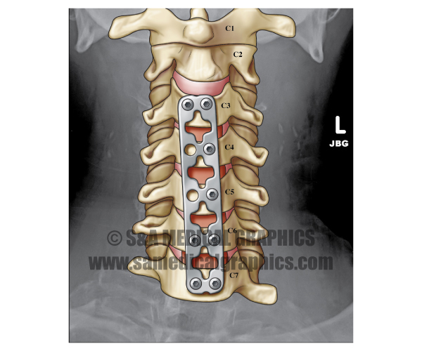 Illustrated Radiology Image Spine Screw Plate
